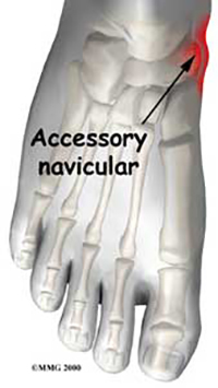 Accessory Navicular Problems