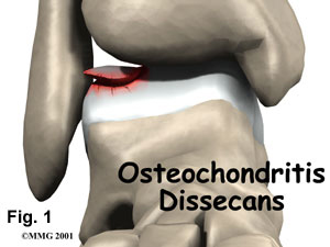 Osteochondritis Dissecans of the Ankle