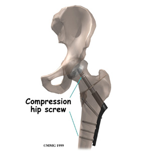 Fractures of the Hip in the Elderly