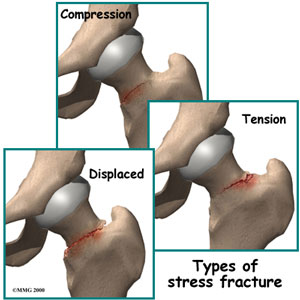 Stress Fractures of the Hip