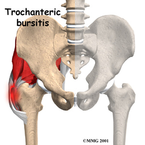 Trochanteric Bursitis of the Hip