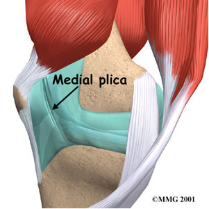 Plica Syndrome