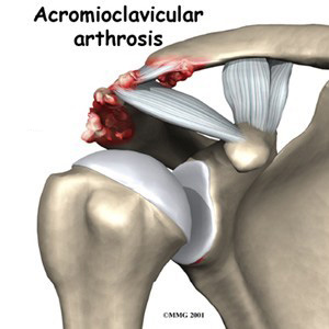 Osteoarthritis of the Acromioclavicular (AC) Joint
