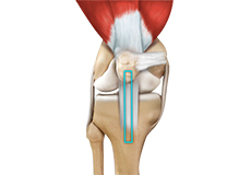 acl-reconstruction-patellar-tendon
