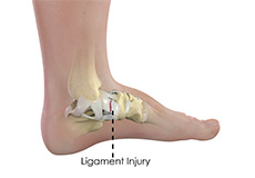 ankle-ligament-injury