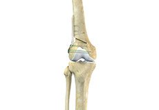 distal-femoral-osteotomy