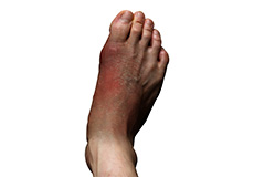 foot-infections