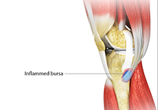 goosefoot-bursitis-of-the-knee Image