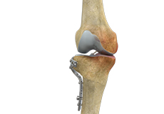 high-tibial-osteotomy