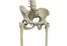 hip-revision-replacement-surgery
