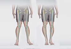 knee-angular-deformities