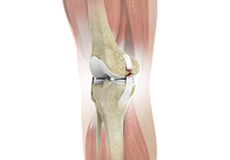 knee-ligament-injuries