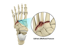lisfranc-midfoot-fracture
