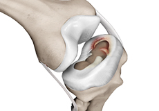 meniscal-injuries