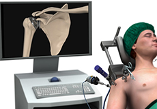 minimally-invasive-shoulder-joint-replacement