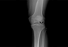 osteonecrosis-of-the-knee