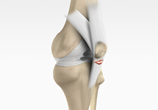 patellar-tendon-repair