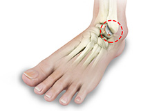 rheumatoid-arthritis-of-the-foot-and-ankle