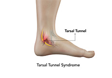 tarsal-tunnel-syndrome
