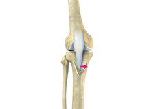tibial-tubercle-osteotomy