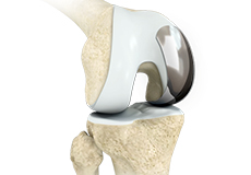 unicondylar-knee-replacement